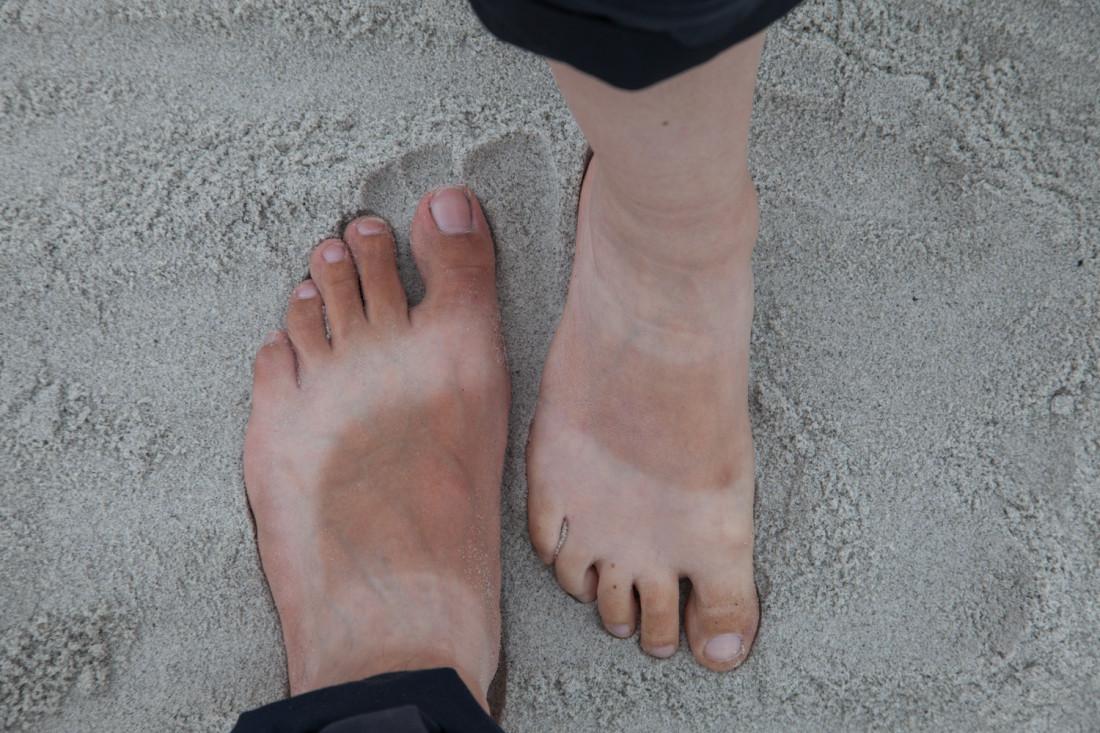 Seit Kanada bestand unsere Fußbegleidung fast durchgehend aus Trekkinsandalen, was mittlerweile eine charakteristisches Muster hinterlassen hat.